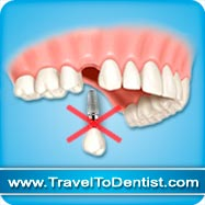 migliori impianti dentali non cadono