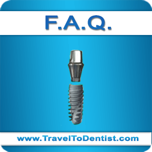 Frequently asked questions about dental implants and oral implantology