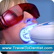 sbiancamento denti laser con sistema zoom