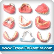 diversi tipi di protesi dentali