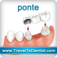Protesi a base di ponti dentale