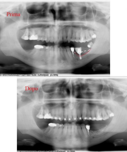 Radiograph of a patient with bone resorption in height and radiograph after bone reconstruction