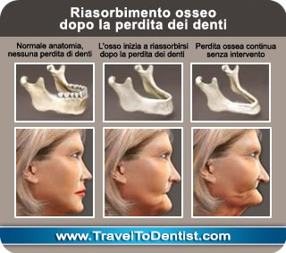 The loss of teeth and bones changes the profile of the face and gives an aging effect.