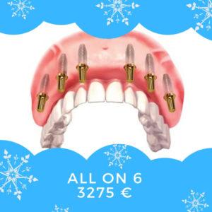 ponte di 12 corone crone su 6 impianti dentali. prezzo in Moldavia 3275 euro