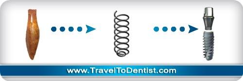L'évolution de l'implantologie dentaire