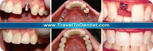 impianti dentali prima e dopo