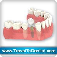 implant dentaire remplace une dent