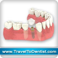 un implante dental reemplaza este diente y mantiene los dientes vecinos