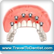 puente fija circular sobre 6 implantes dentales