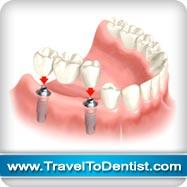 puente tres dientes sobre dos implantes dentales