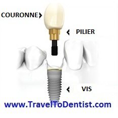 Las parte de un implante dental