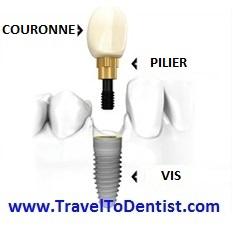 Les parties composantes d'un implant dentaire