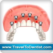 implants dentaires remplace tous les dents