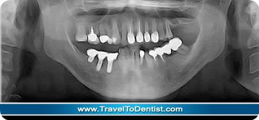 radiografia panoramica con implantes dentales