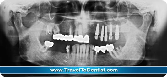 radiographie panoramique avec implants dentaires