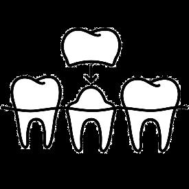coroana pe dinte
