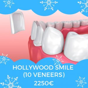 hollywood smile (10 Veneers) Price in dental clinic Chisinau 2250€