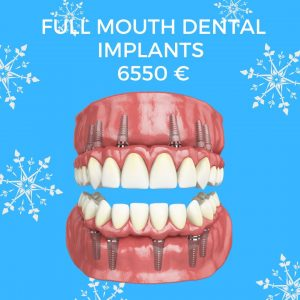 full mouth implants price in dental clinic Moldova