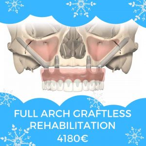 full arch graftless rehabilitation, zygomatic implants. price in moldova 4180€