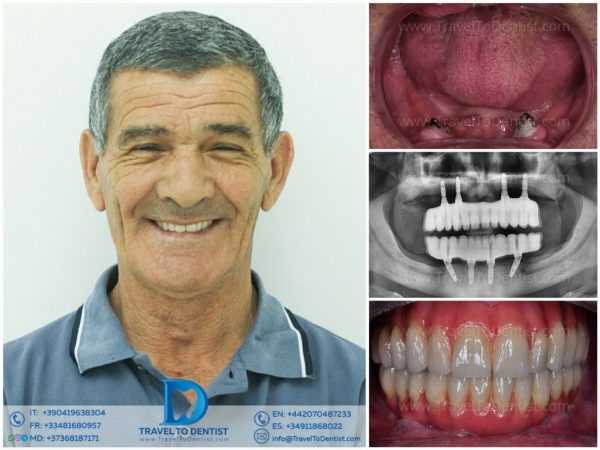 Photo collage Before and After dental implants all teeth, x-ray, patient smiling after dental treatment in Moldova
