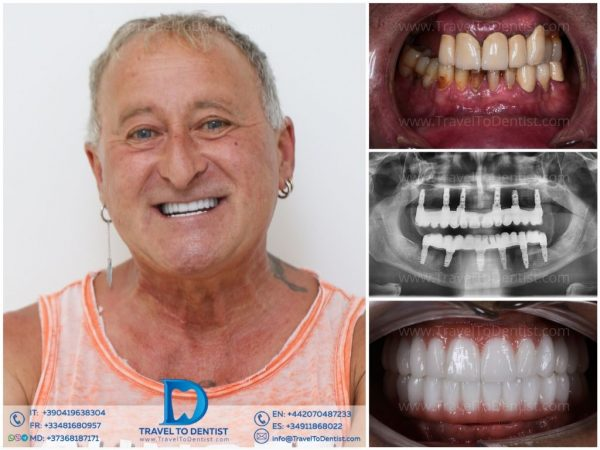 Before and After Zirconium teeth + all-on-6; X-ray with the implants on the top and on the bottom; portrait of the smiling patient
