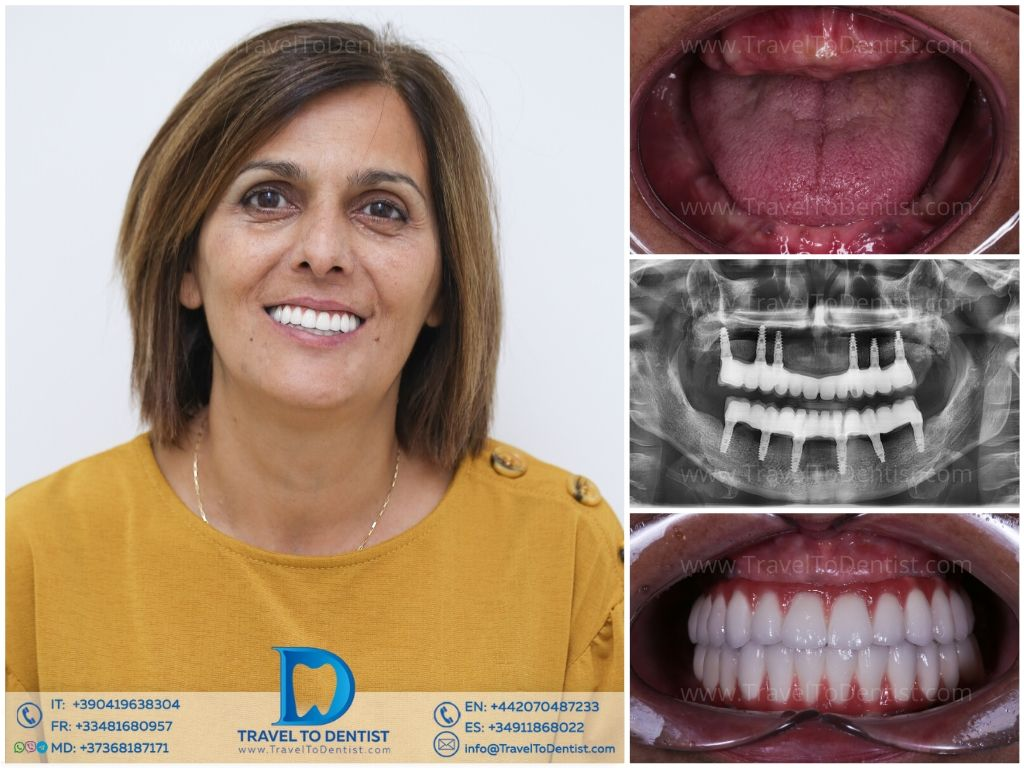 photo collage - Before and after the replacement of all teeth with dental implants