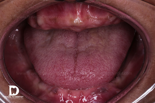 gura edentată a unei femei