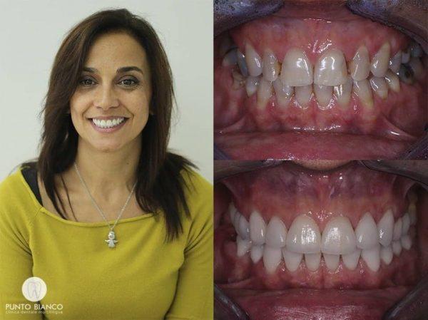 Fațete dentare în Chișinău. Foto înainte și după + zâmbet de fericire