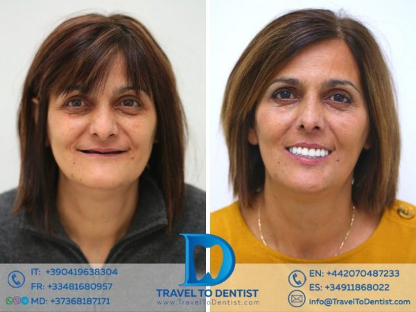 The patient's smile before and after fixing the bridge over the dental implants