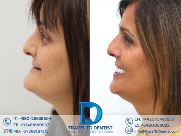 Diferența enormă a feței înainte și după implanturi dentare.