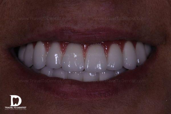 Metal-ceramic bridges (both jaws)