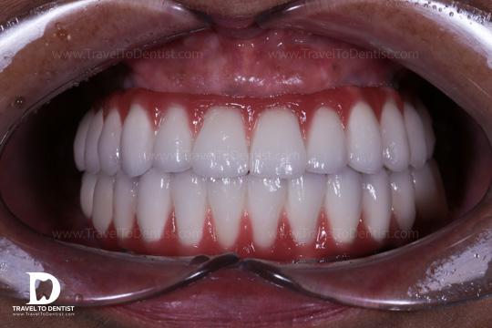 proteze fixe pe implanti dentari. Tratament realizat în Moldova