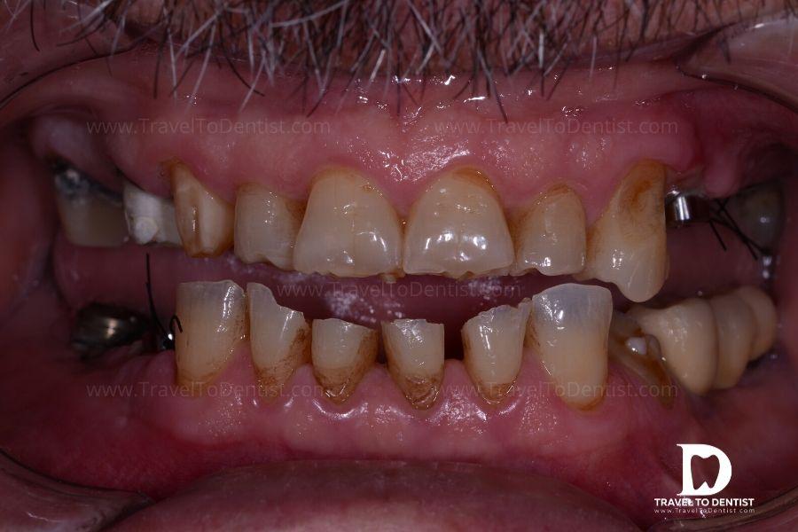 datând un tip cu dinți frontali lipsă