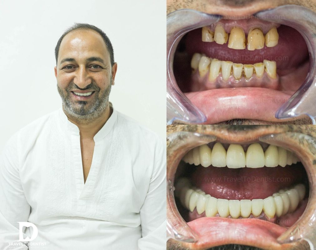 The patient smiles after solving his problem with partial edentation + intraoral photo before and after