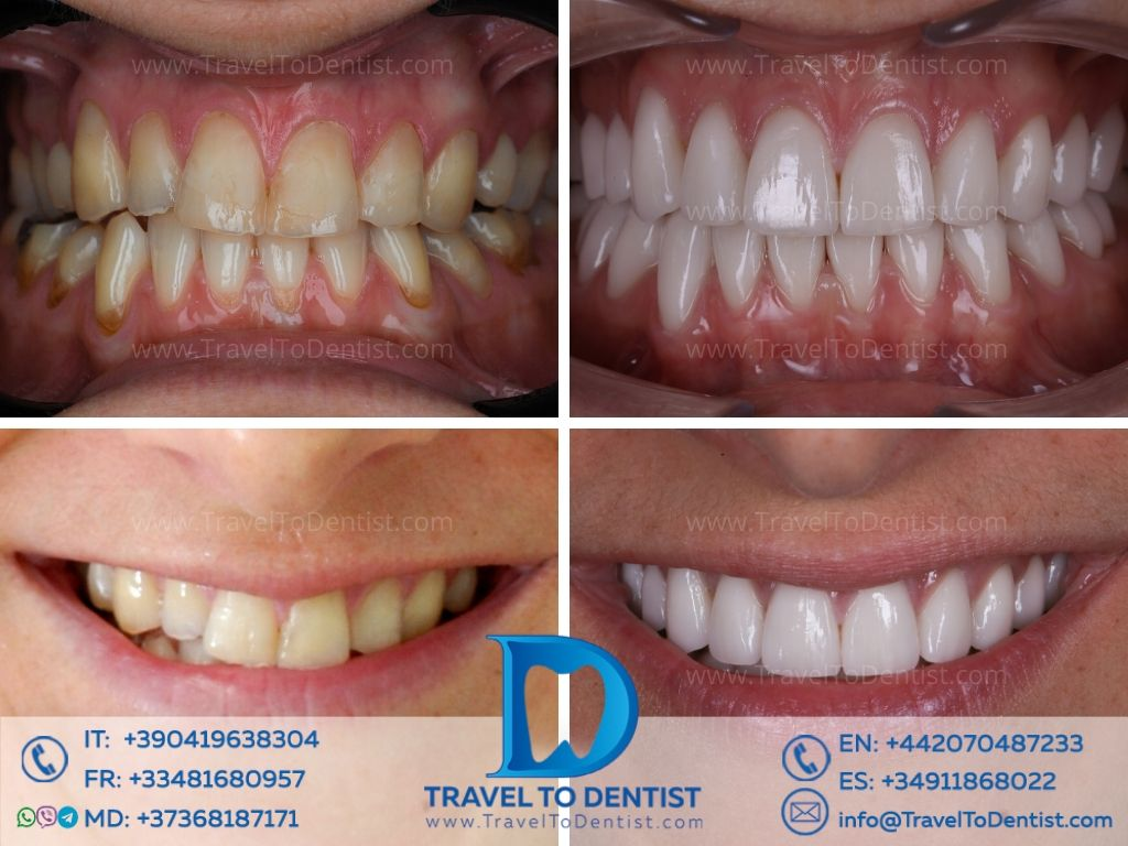 Dental veneers in Chisinau. Photos before and after + smile of happiness