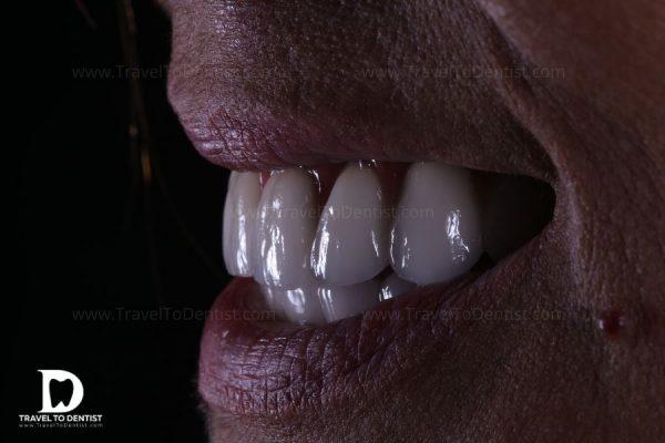 The new smile - bridges over dental implants. Made in Moldova
