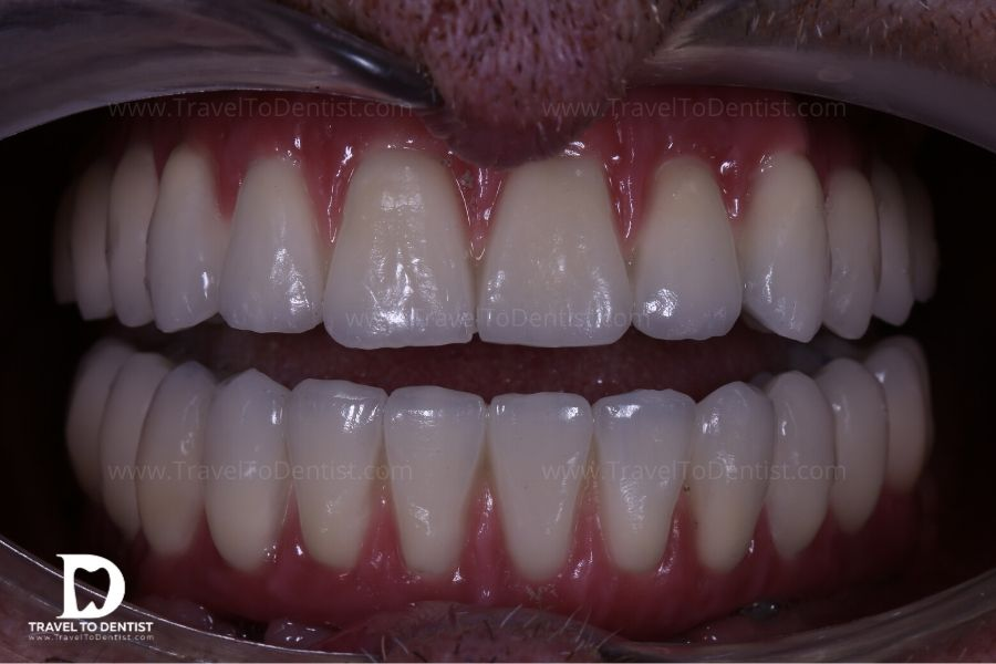Punți fixe pe implanturi zigomatice (sus) și pe implanturi clasice (jos)