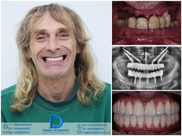 Before and after a complete rehabilitation of the mouth in Moldova: on the upper jaw zygomatic implants, on the lower jaw classic implants. On each jaw there are 12 teeth made of metal-ceramic