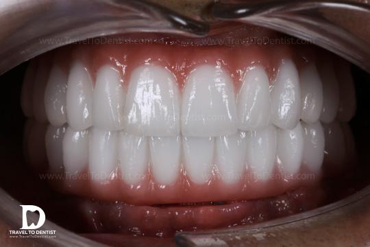 dinți din zirconiu pe impanturi - ambele maxilare