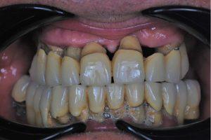 Spațiu mare între gingie și puntea din metaloceramică