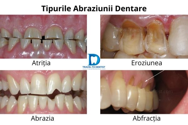 collage with the types of dental abrasion: Attrition, Erosion, Abrasion and Abfraction