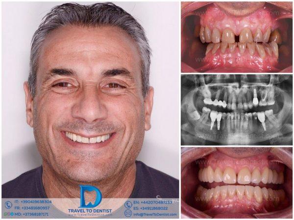 Caso clínico de resolución de 2 problemas con la ayuda de carillas dentales: dientes desgastados y espacio entre los dientes. Y también reemplazo del los dientes laterales ausentes con implantes dentales. Realizado con éxito en nuestra clínica dental de Chisinau