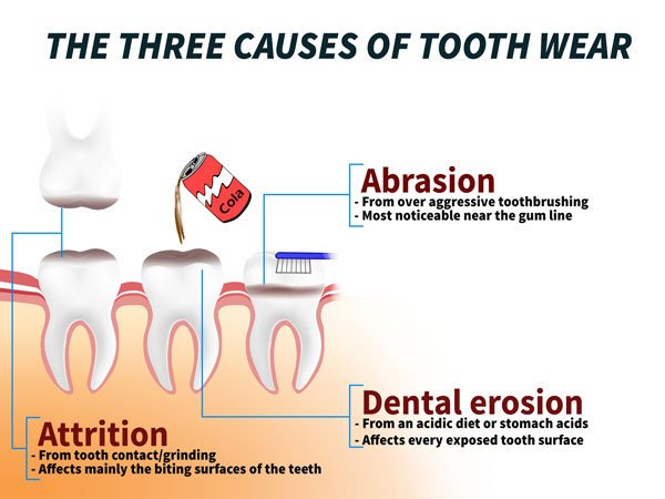 the most common causes of tooth wear (worn down teeth)