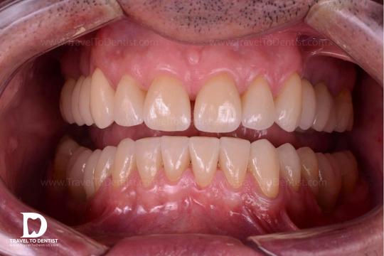 Rezultatul final al reabilitării cu fațete dentare a pacientului cu abraziune dentară (dinți tociți). 100% made in Moldova