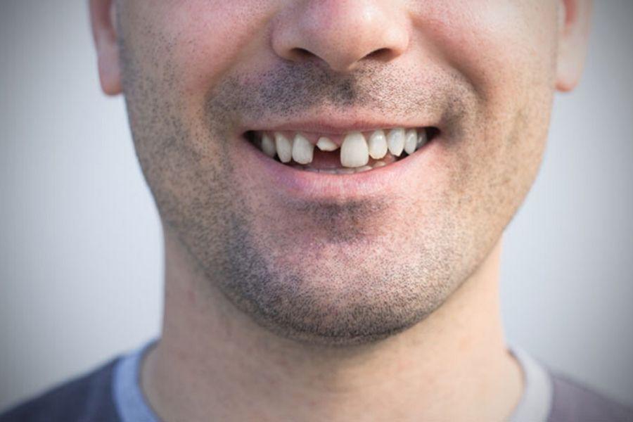 poate un dinte să provoace pierderea în greutate greutate sănătoasă de pierdut în 4 luni