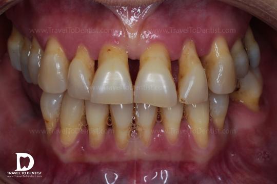 Los dientes están afectados por la periodontitis. El hueso ha retirado y las raíces están descubiertas.