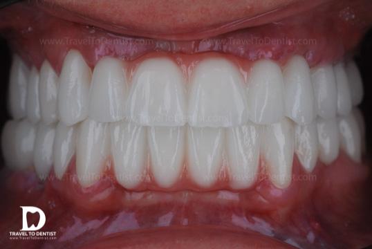 Noii dinți din zirconiu ceramică făcuți de dentiștii din Chișinău