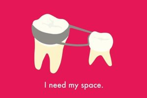 Menținător de spațiu - dispozitiv ortodontic