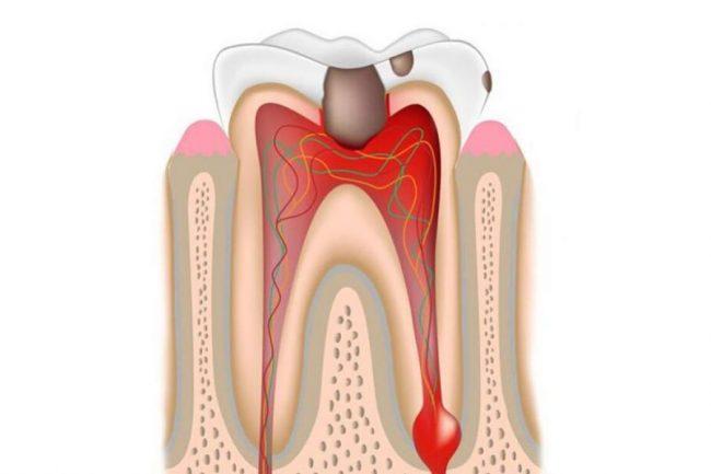 boli dentare eliminați papiloma în prețul ryazan