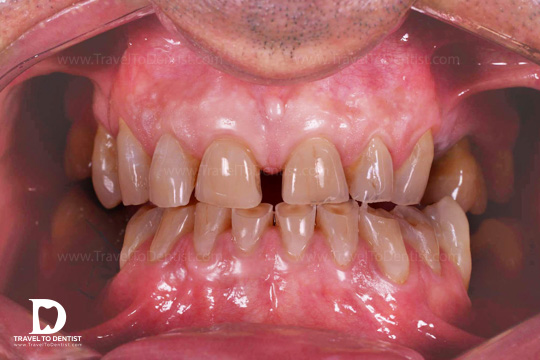 This patient has worn down lower teeth. We notice how a part of each tooth is damaged